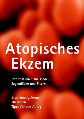 (Atopisches) Ekzem / Neurodermitis - hautarzt-zuerich.ch