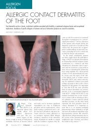 Allergic coNtAct DermAtitis of the foot - The Dermatologist