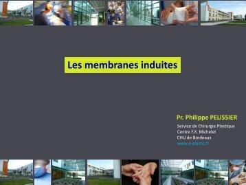 Les membranes induites - e-plastic.fr