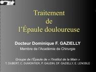 Traitement de l'Épaule douloureuse - ClubOrtho.fr