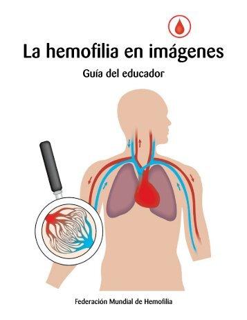 La hemofilia en imágenes - World Federation of Hemophilia