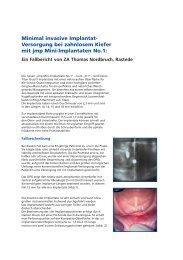 Minimal invasive Implantat- Versorgung bei zahnlosem ... - JMP Dental