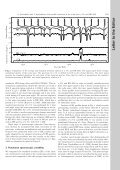 Pulsational and rotational line profile variations of the roAp stars ... - Page 2
