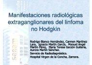 Manifestaciones radiológicas del linfoma no Hodgkin