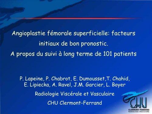 Angioplastie fémorale superficielle: facteurs initiaux de bon ...