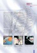 VERTEBRIS Lumbar-Thoracic - Richard Wolf - Page 7