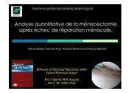 Analyse quantitative de la méniscectomie après échec ... - ClubOrtho.fr