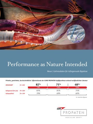 Performance as Nature Intended - Gore Medical
