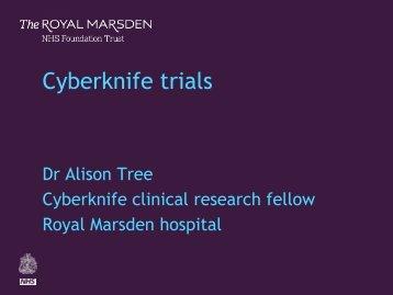 8-cyberknife-trials - Royal Marsden Hospital