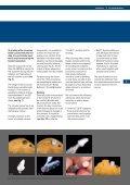 PITT-EASY® Zirconium Abutment Instructions - Page 5