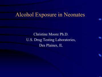Alcohol Exposure in Neonates