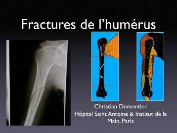 Fractures humérus C. Dumontier - ClubOrtho.fr