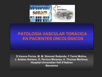 sarcoma de arteria pulmonar