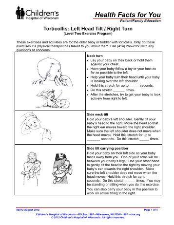 Torticollis Right Head Tilt Left Turn Children S