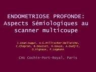 ENDOMETRIOSE PROFONDE: Aspects Sémiologiques au scanner ...