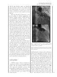 RPC 2010 1839.pdf - Repositório do Centro Hospitalar de Lisboa ... - Page 7