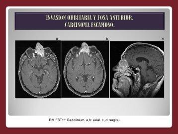 invasion orbitaria y fosa anterior. carcinoma escamoso.
