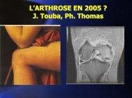 L'arthrose en 2005 - ammppu