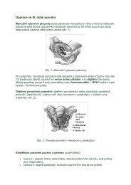 Operace ve III. době porodní - eAMOS