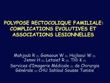 POLYPOSE RECTOCOLIQUE FAMILIALE: COMPLICATIONS ...