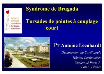 Syndrome de Brugada Torsades de pointes à couplage court