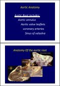 Aortic Dissection - Page 2