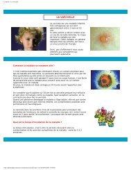 Conseils - La varicelle