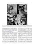 The primate subarcuate fossa and its relationship to the semicircular ... - Page 5