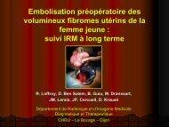 Embolisation préopératoire des volumineux fibromes utérins de la ...