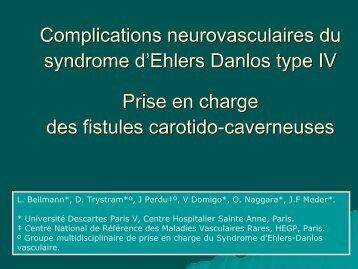Complications neurovasculaires du syndrome d'Ehlers Danlos type ...