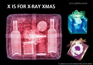 X IS FOR X-RAY XMAS - Science Photo Library