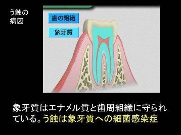う蝕は象牙質への細菌感染症