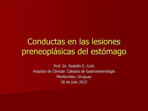 Conductas en las lesiones preneoplásicas del estómago