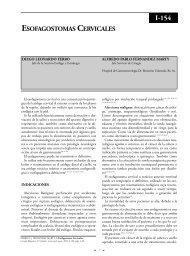 Esofagostomas cervicales. - sacd.org.ar