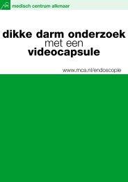 Dikke darmonderzoek met een videocapsule - Mca