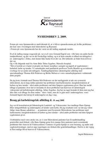 NYHEDSBREV 2. 2009. - Dansk Sklerodermi & Raynaud Forening