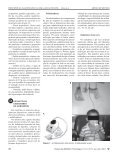 17-89-Princípios da inaloterapia na asma.p65 - Page 3