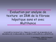 Evaluation par analyse de texture en IRM de la fibrose hépatique ...