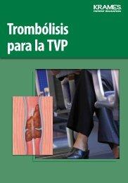 Trombólisis para la TVP - Veterans Health Library
