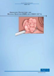 MUCOSAL RESECTION (EMR) WITH ENDO CUT Q. - Elmed