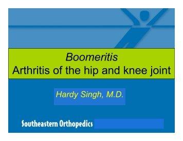 Boomeritis Arthritis of the hip and knee joint - Duke Raleigh Hospital