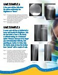 Sanford Childrens Orthopedic Fracture Remodeling - Sanford Health - Page 4