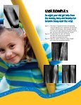 Sanford Childrens Orthopedic Fracture Remodeling - Sanford Health - Page 5