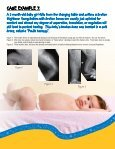 Sanford Childrens Orthopedic Fracture Remodeling - Sanford Health - Page 7