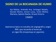 SIGNO DE LA BOCANADA DE HUMO - Congreso SORDIC