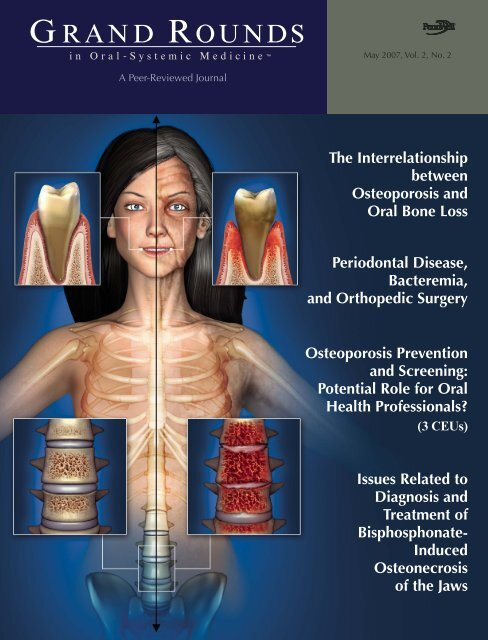 Grandrounds in Oral-Systemic Medicine - Giovanni Maria Gaeta