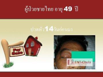 ผู้ป่วยชายไทย อายุ 49 ปี