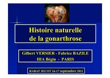Indications chirurgicales dans la gonarthrose - ClubOrtho.fr