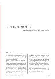 LASER EN FLEBOLOGIA