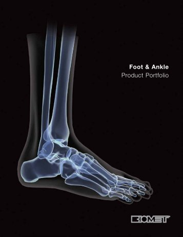 Foot & Ankle Product Portfolio - BMET0119.0 - Biomet